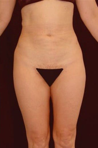Liposuction Gallery - Patient 39217615 - Image 2