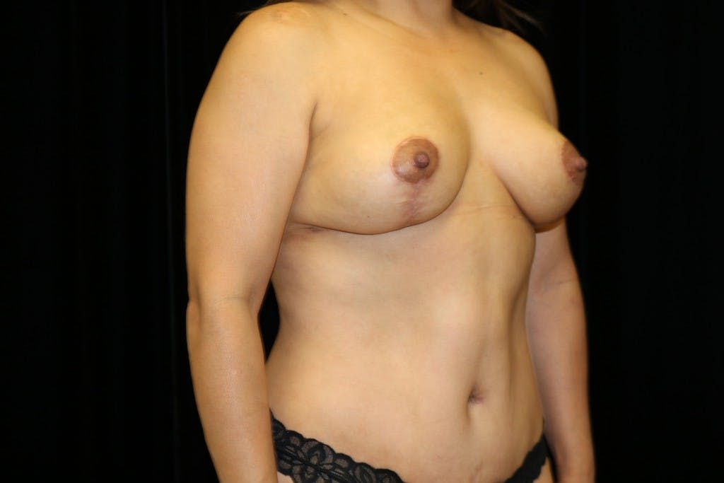 Mommy Makeover Gallery - Patient 39217619 - Image 4