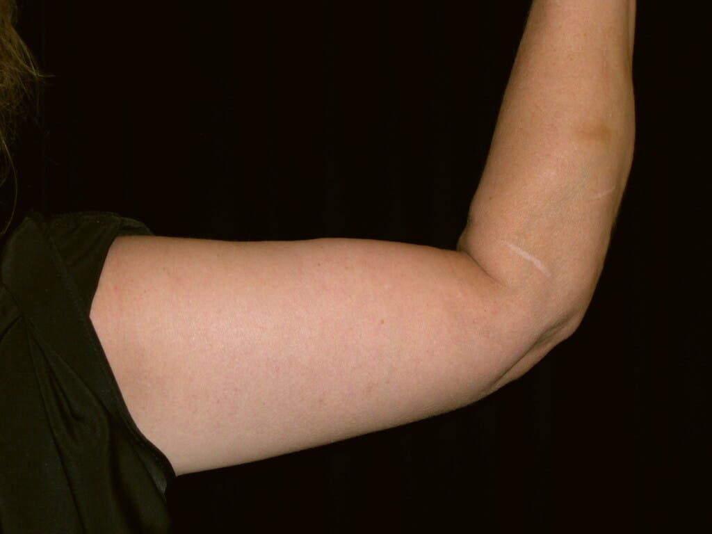 Arm Lift Gallery - Patient 39217616 - Image 6