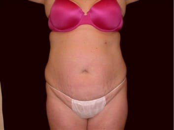 Tummy Tuck Gallery - Patient 39217618 - Image 1
