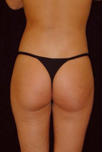 Thigh Lift and Buttocks Gallery - Patient 39217617 - Image 2