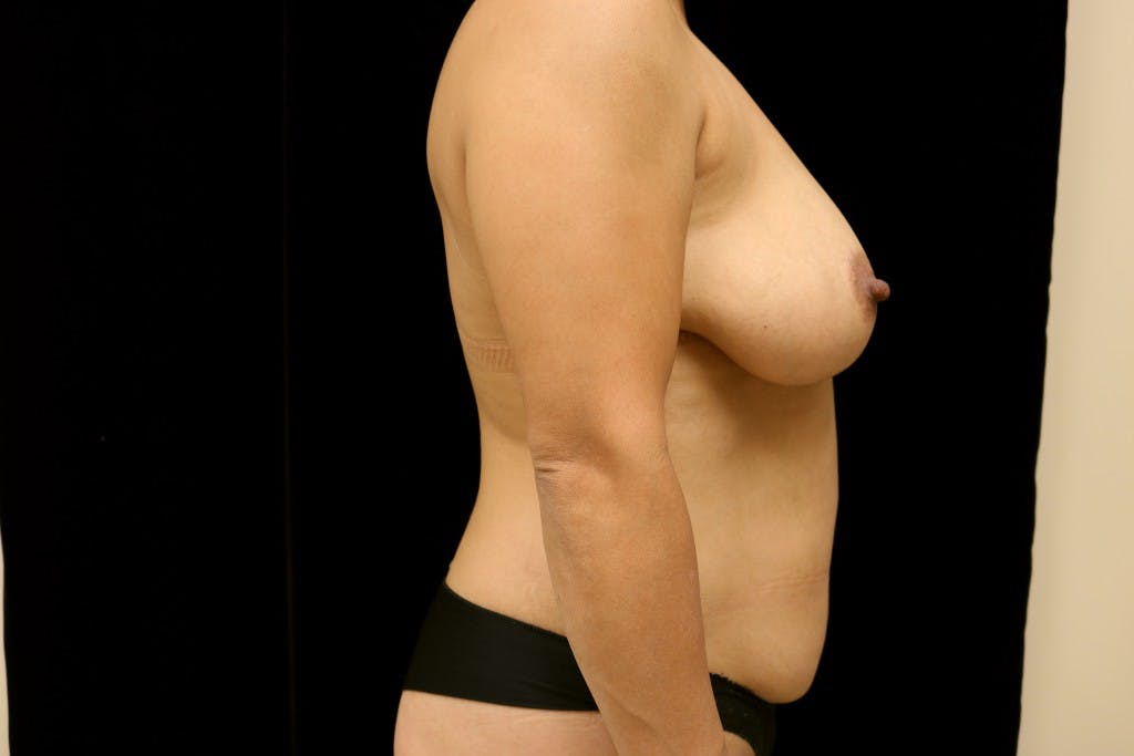 Mommy Makeover Gallery - Patient 39217619 - Image 5
