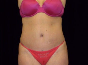 Tummy Tuck Gallery - Patient 39217618 - Image 2