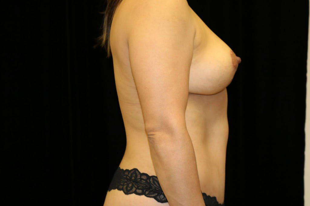 Mommy Makeover Gallery - Patient 39217619 - Image 6