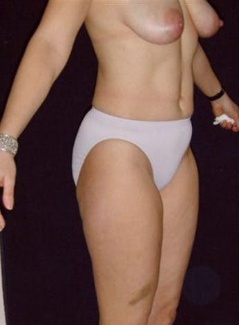 Liposuction Gallery - Patient 39217620 - Image 1