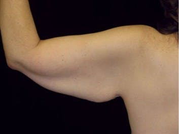 Arm Lift Gallery - Patient 39217621 - Image 1