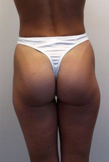 Thigh Lift and Buttocks Gallery - Patient 39217622 - Image 1