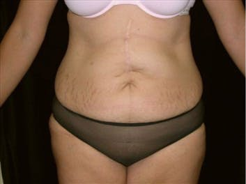 Tummy Tuck Gallery - Patient 39217623 - Image 1
