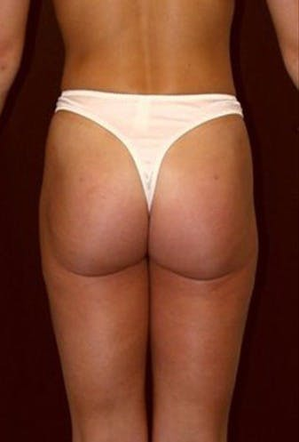 Thigh Lift and Buttocks Gallery - Patient 39217622 - Image 2