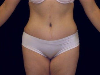 Tummy Tuck Gallery - Patient 39217623 - Image 2