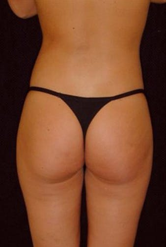 Liposuction Gallery - Patient 39217627 - Image 2