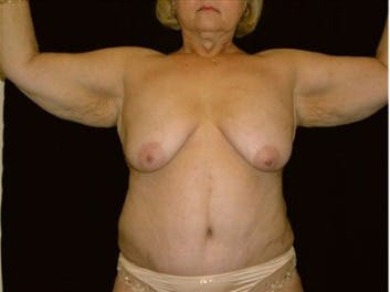 Arm Lift Gallery - Patient 39217628 - Image 1