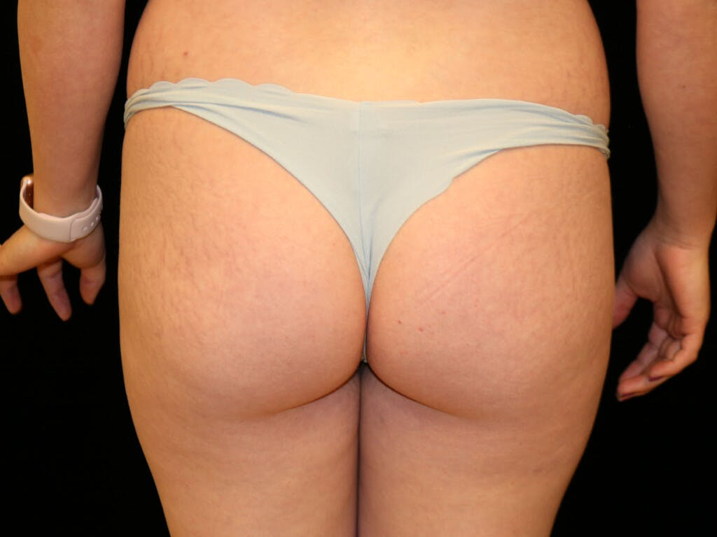 Thigh Lift and Buttocks Gallery - Patient 39217642 - Image 1