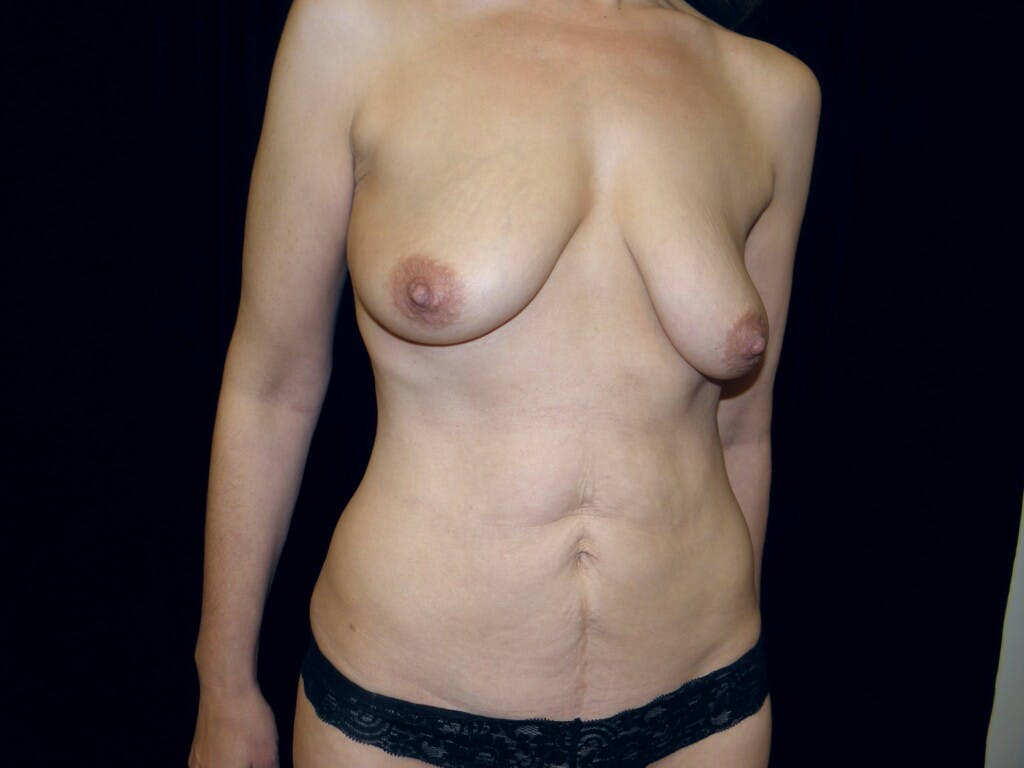 Mommy Makeover Gallery - Patient 39217630 - Image 3
