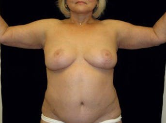 Arm Lift Gallery - Patient 39217628 - Image 2