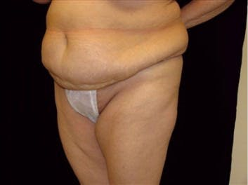 Tummy Tuck Gallery - Patient 39217629 - Image 1