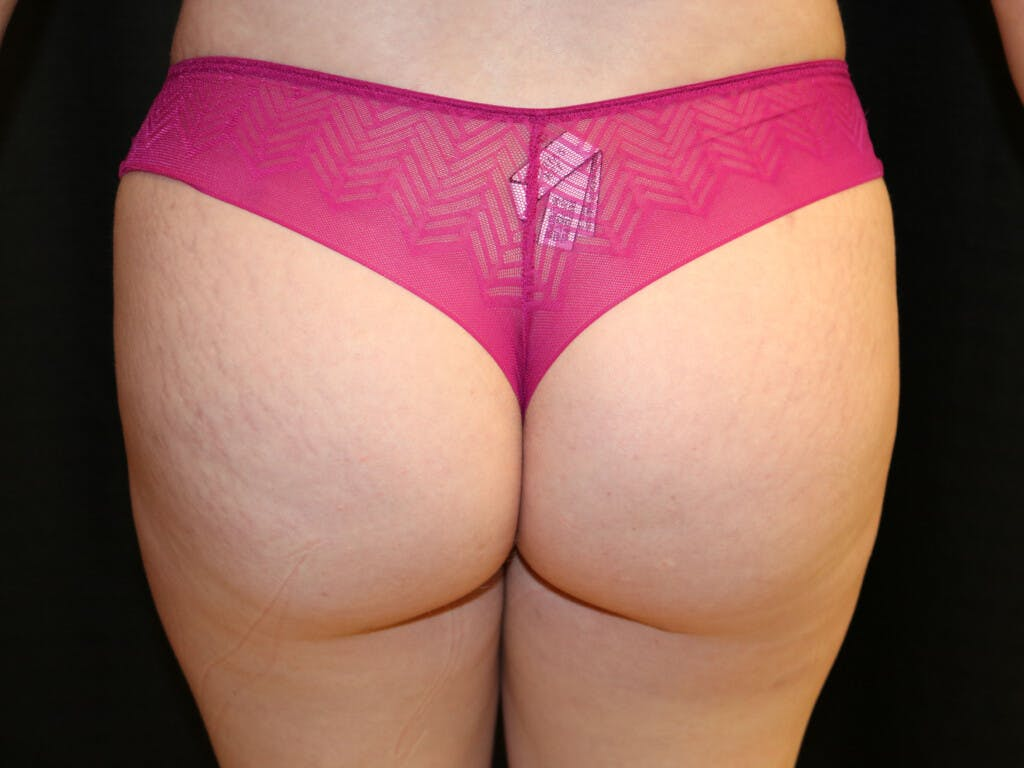 Thigh Lift and Buttocks Gallery - Patient 39217642 - Image 2