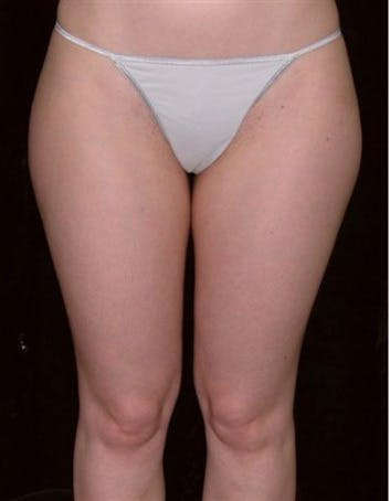 Liposuction Gallery - Patient 39217631 - Image 1