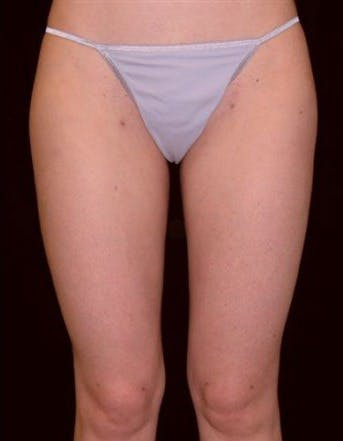 Liposuction Gallery - Patient 39217631 - Image 2