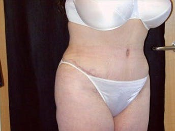 Tummy Tuck Gallery - Patient 39217638 - Image 2
