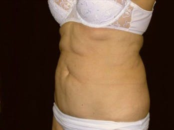 Tummy Tuck Gallery - Patient 39217655 - Image 1