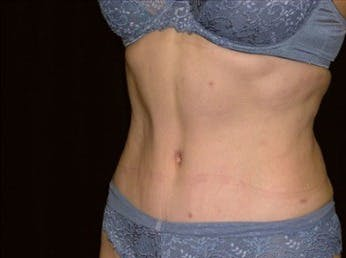 Tummy Tuck Gallery - Patient 39217655 - Image 2