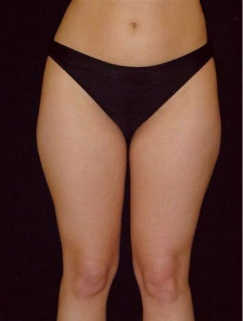 Liposuction Gallery - Patient 39217656 - Image 1