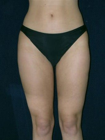 Liposuction Gallery - Patient 39217656 - Image 2