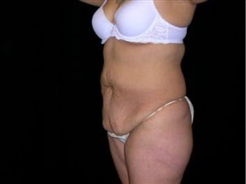 Tummy Tuck Gallery - Patient 39217657 - Image 1