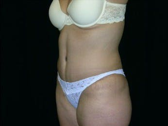 Tummy Tuck Gallery - Patient 39217657 - Image 2