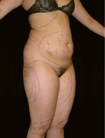 Liposuction Gallery - Patient 39217659 - Image 1