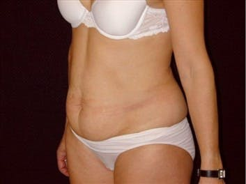 Tummy Tuck Gallery - Patient 39217660 - Image 1