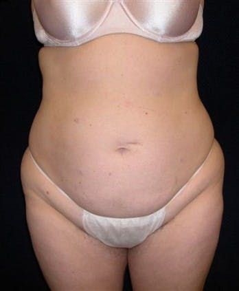 Liposuction Gallery - Patient 39217661 - Image 1