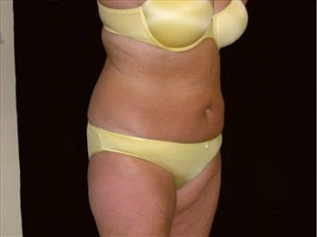 Tummy Tuck Gallery - Patient 39217664 - Image 1