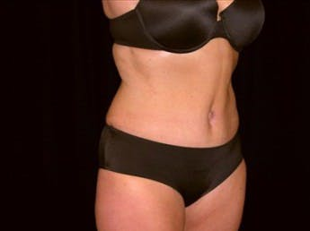 Tummy Tuck Gallery - Patient 39217664 - Image 2