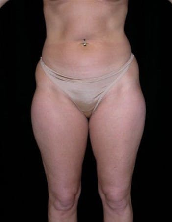 Liposuction Gallery - Patient 39217665 - Image 1
