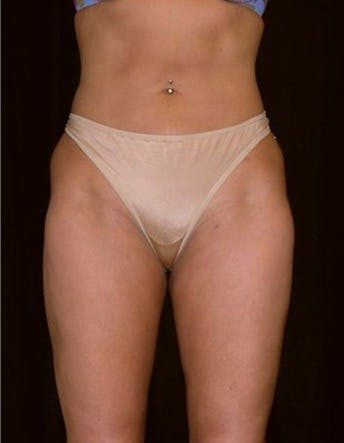 Liposuction Gallery - Patient 39217665 - Image 2