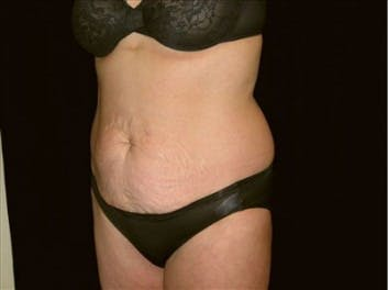 Tummy Tuck Gallery - Patient 39217669 - Image 1