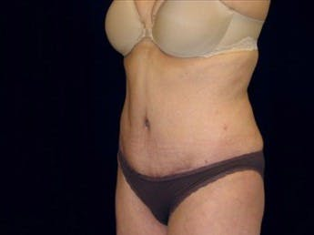 Tummy Tuck Gallery - Patient 39217669 - Image 2