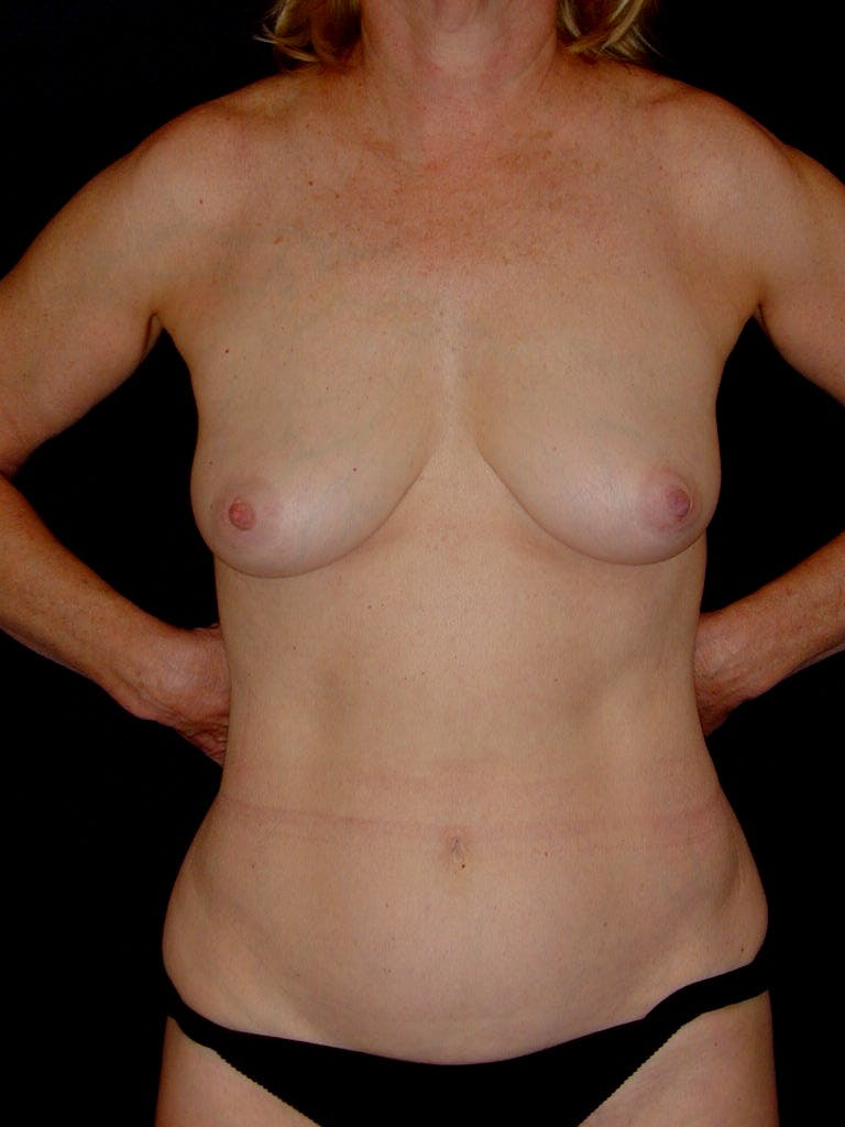 Mommy Makeover Gallery - Patient 39217676 - Image 1