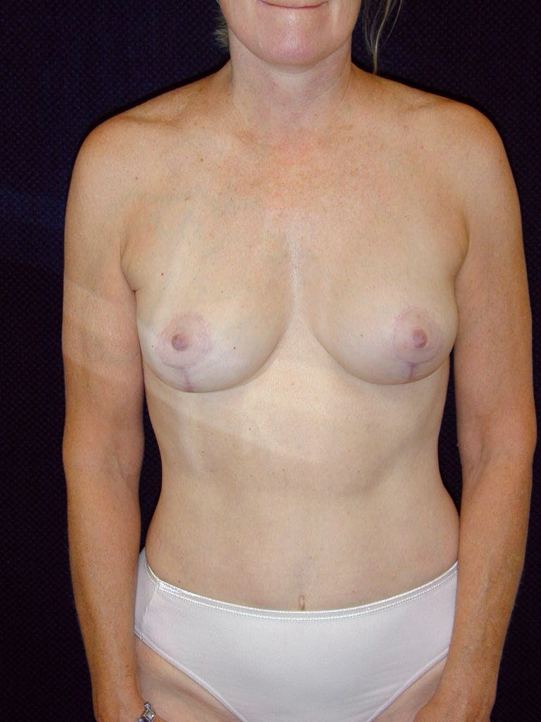 Mommy Makeover Gallery - Patient 39217676 - Image 2