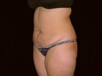 Tummy Tuck Gallery - Patient 39217673 - Image 1