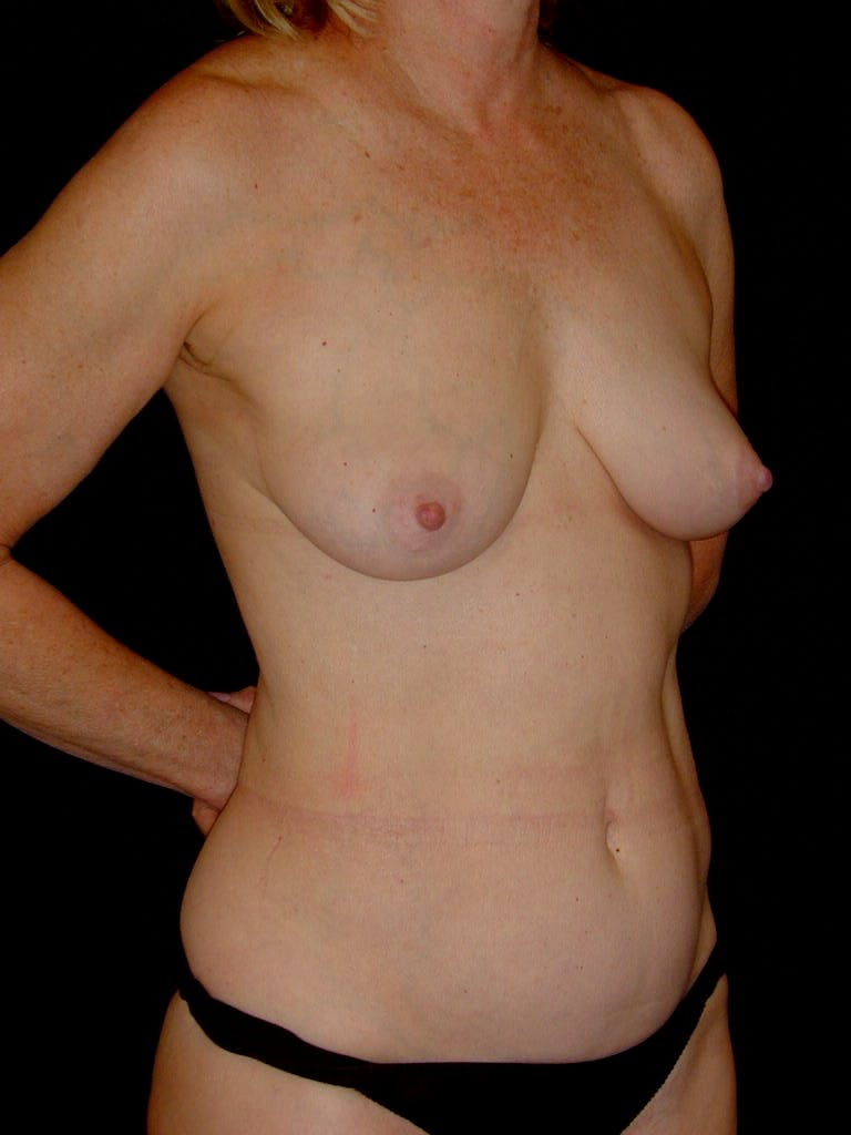 Mommy Makeover Gallery - Patient 39217676 - Image 3