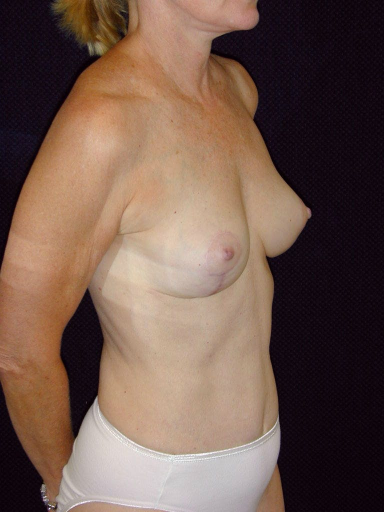 Mommy Makeover Gallery - Patient 39217676 - Image 4