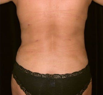 Liposuction Gallery - Patient 39217674 - Image 2