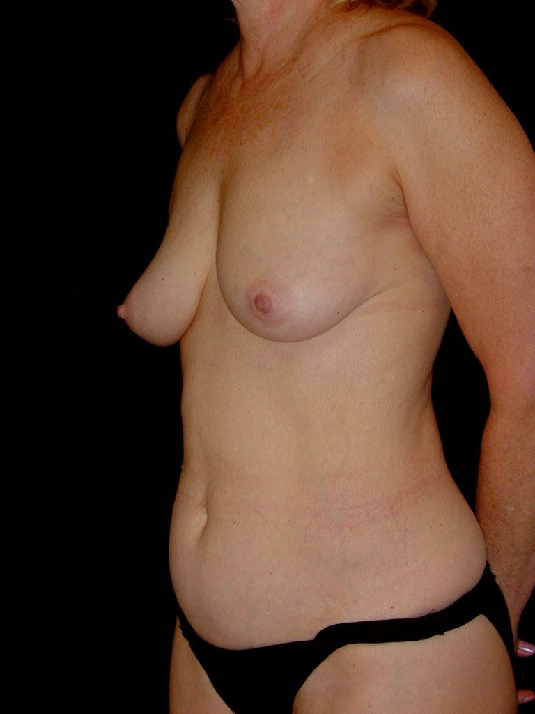 Mommy Makeover Gallery - Patient 39217676 - Image 5