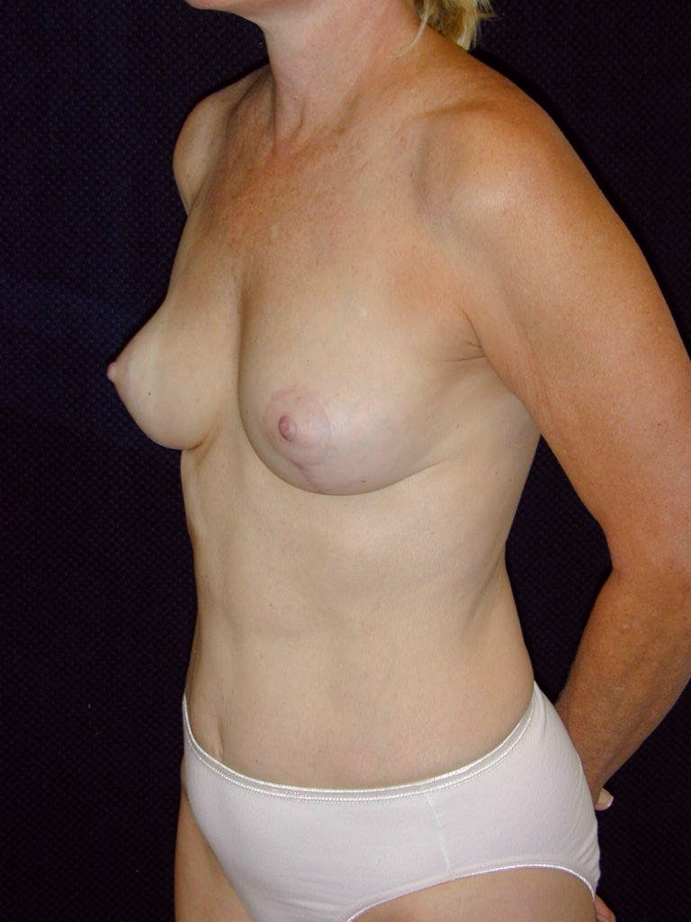 Mommy Makeover Gallery - Patient 39217676 - Image 6