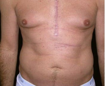 Liposuction Gallery - Patient 39217677 - Image 1