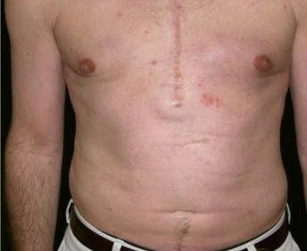 Liposuction Gallery - Patient 39217677 - Image 2