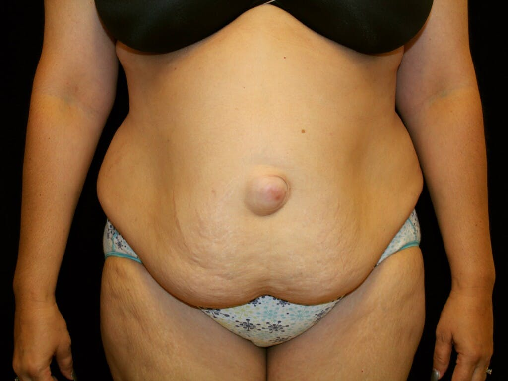 Tummy Tuck Gallery - Patient 39217682 - Image 1